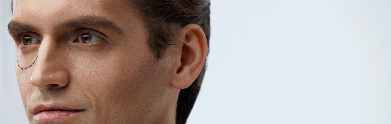 Blépharoplastie ou chirurgie des paupières